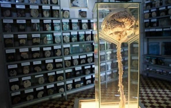 """世界第一所""""人脑博物馆"""",收藏近3千颗标本,游客可触摸人脑(2)"""